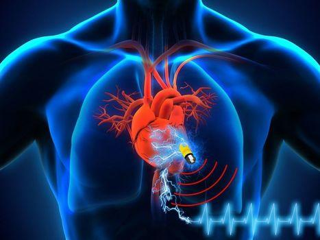 8 600 failles de sécurité dans les pacemakers | via Bleeping Computer